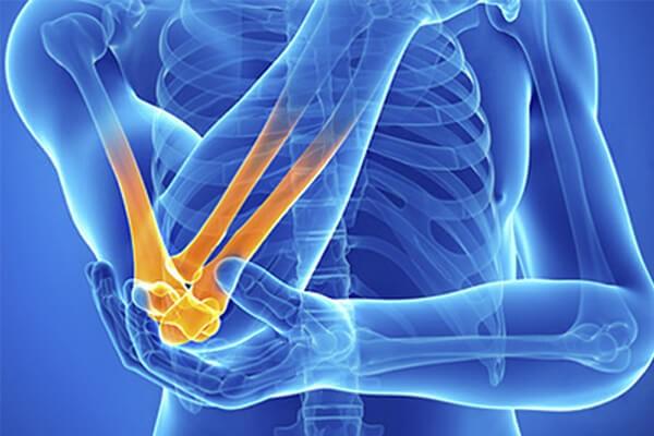 Международный стандарт лечений ревматоидного артрита