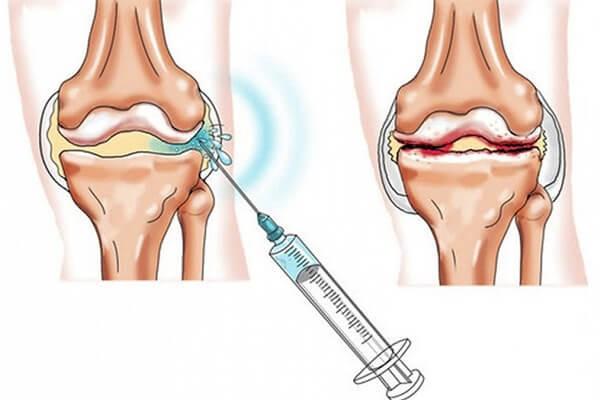 Мази от растяжения и ушиба коленного сустава